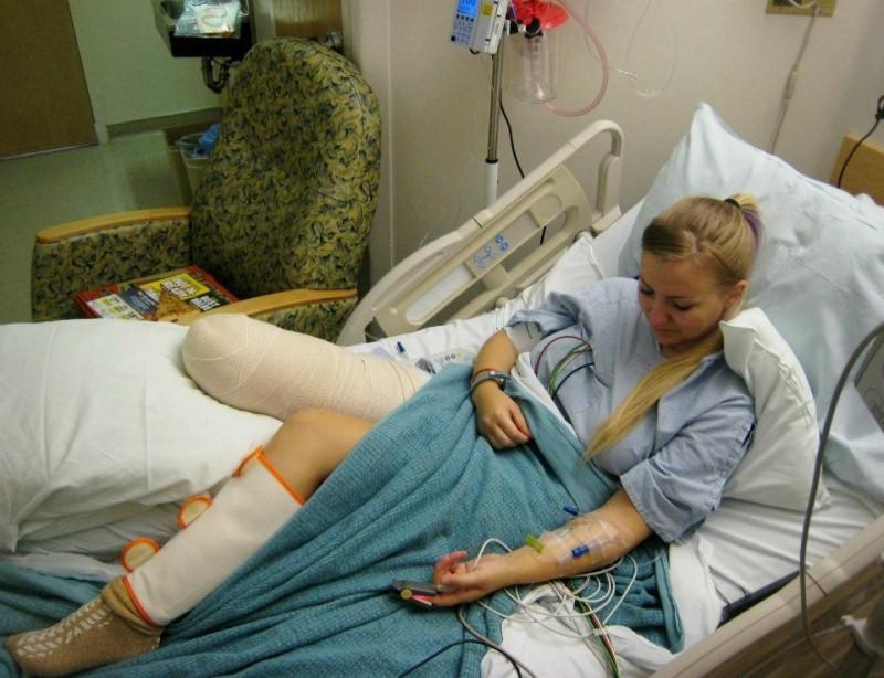 Bein Abgetrennt
