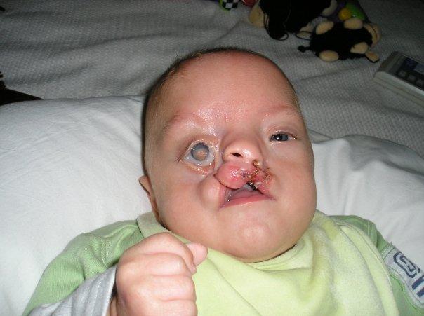 Er war der schlimmste fall den die rzte je sahen 9 jahre sp ter hat er eine waffe gegen die - Fotos van de bebe garcon ...