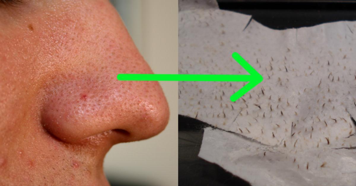 Чем убрать прыщи с носа в домашних условиях быстро