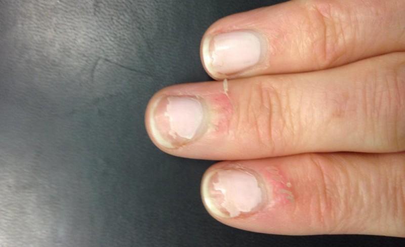 Verhornte Haut Um Die Fingernägel
